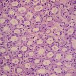 Renal Medulla Histology | Kidney