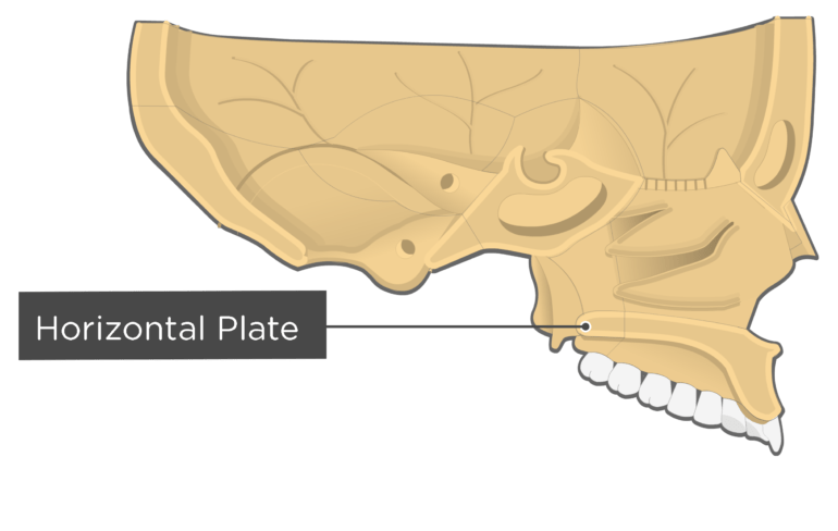 sagittal view of the skull with a label of the horizontal plate