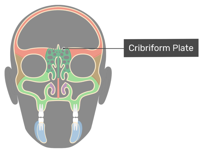 Coronal view of the cribriform plate highlighted and labeled.