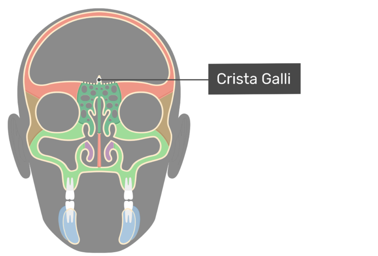 Coronal view of the crista galli highlighted and labeled.
