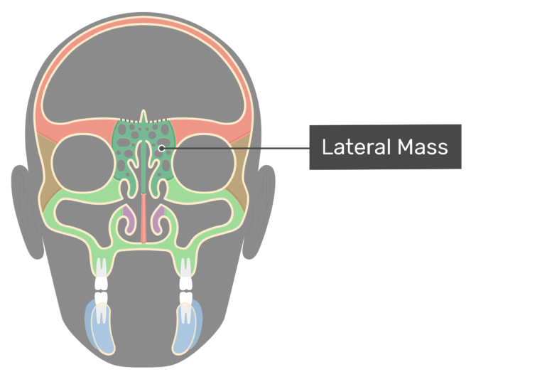 Coronal view of the lateral mass highlighted and labeled.