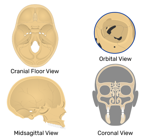Four views of the ethmoid bone.