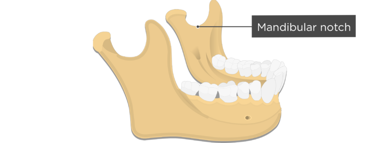 Mandibular notch - Mandible bone - Lateral view