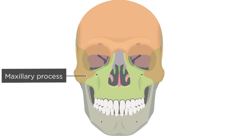 Maxillary process - Zygomatic Bone - Anterior-View - Colored