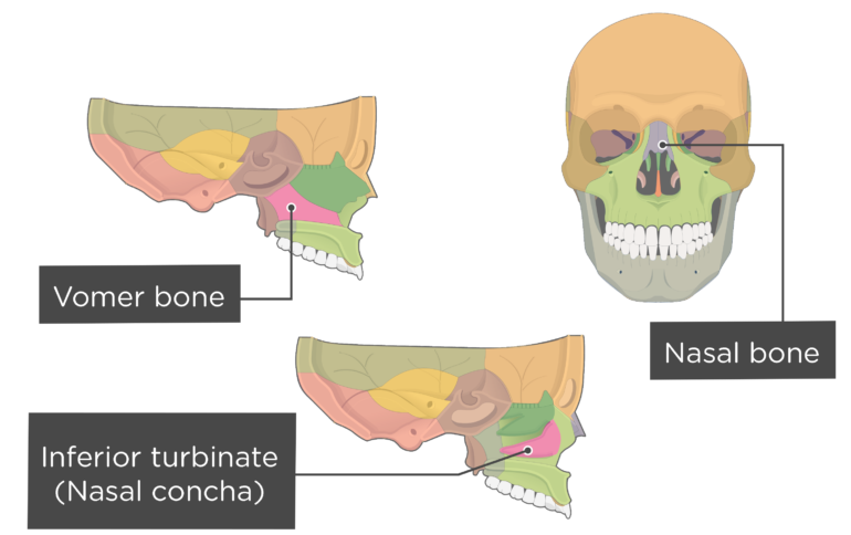 Nasal, Vomer, and Inferior Turbinate (Concha) Bones Overview Labeled Colored