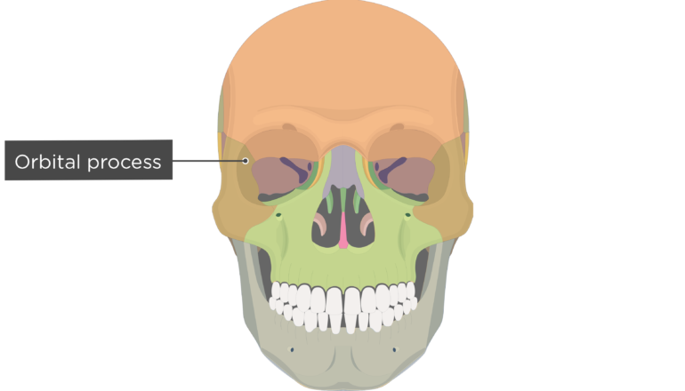 Orbital process - Zygomatic Bone - Anterior-View - Colored