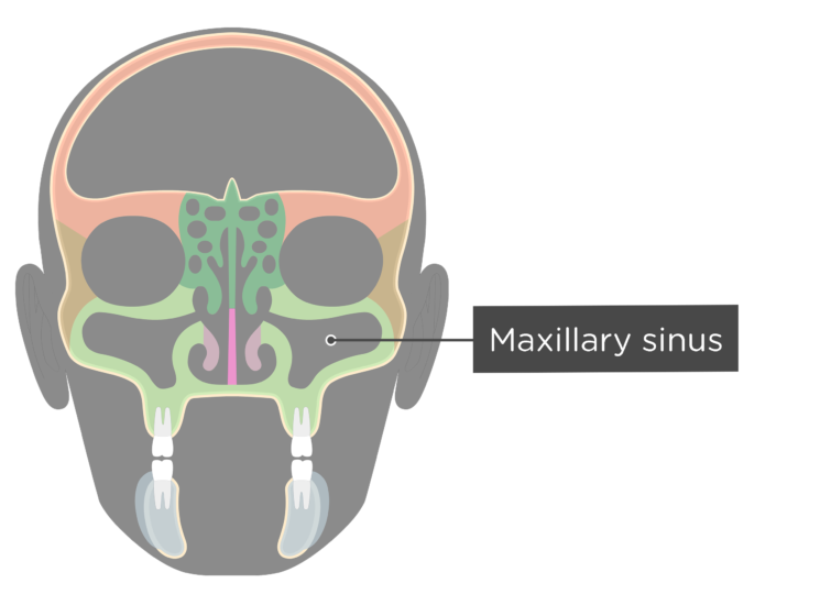 The maxillary sinus - coronal view