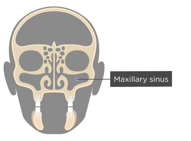 The maxillary sinus - coronal view