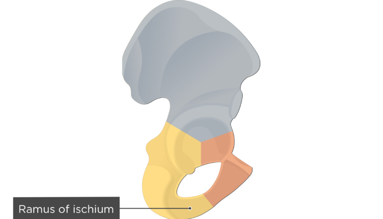 Ramus of ischium - Hip Bone Colored