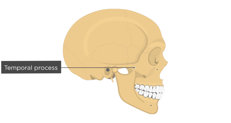 Temporal process - Zygomatic Bone - Lateral-View