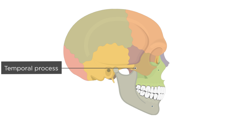 Temporal process - Zygomatic Bone - Lateral-View - Colored