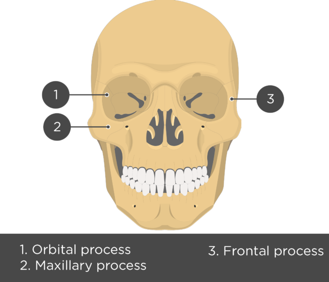 Zygomatic Bone - Anterior View - Test yourself - Answers