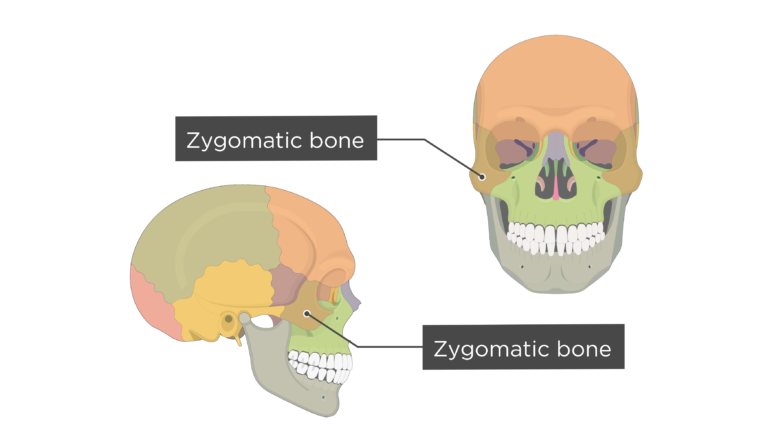 Zygomatic Bone - Overview - Colored