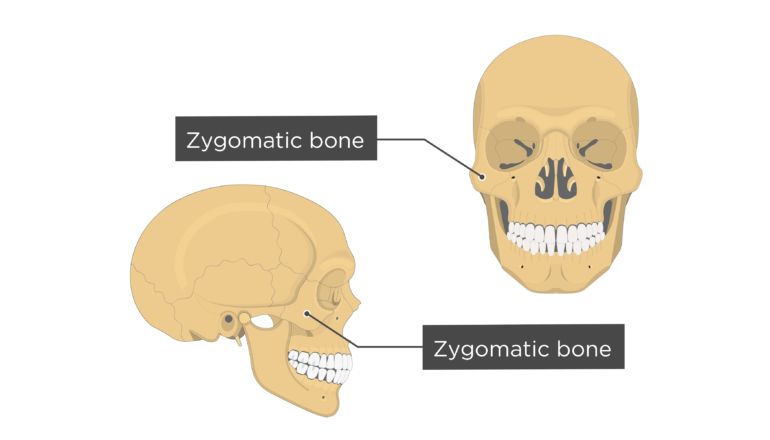 Zygomatic Bone - Overview - Labeled