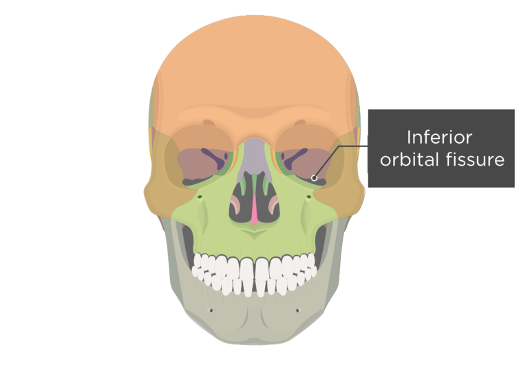 Anterior view of the skull showing the iinferior orbital fissure