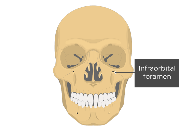 Anterior view of the skull showing the infraorbital foramen