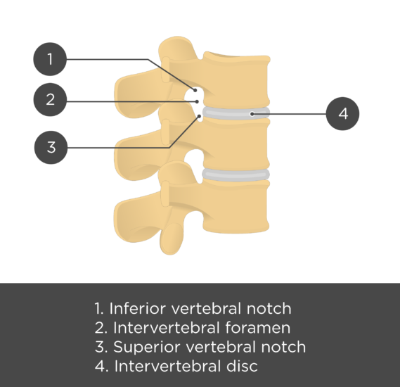 lumbar vertebra - articulated view - test yourself - answers