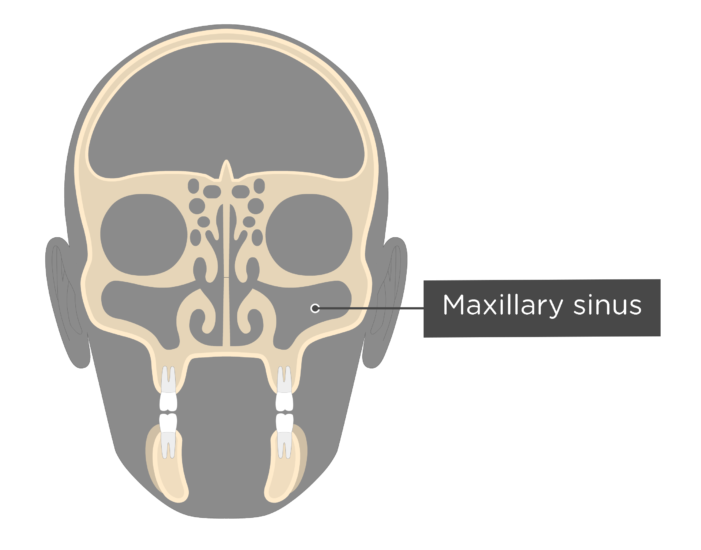 Coronal view of the skull showing the maxillary sinus