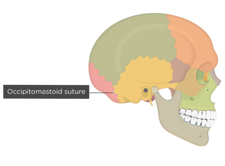 occipitomastoid suture - lateral view - divisions