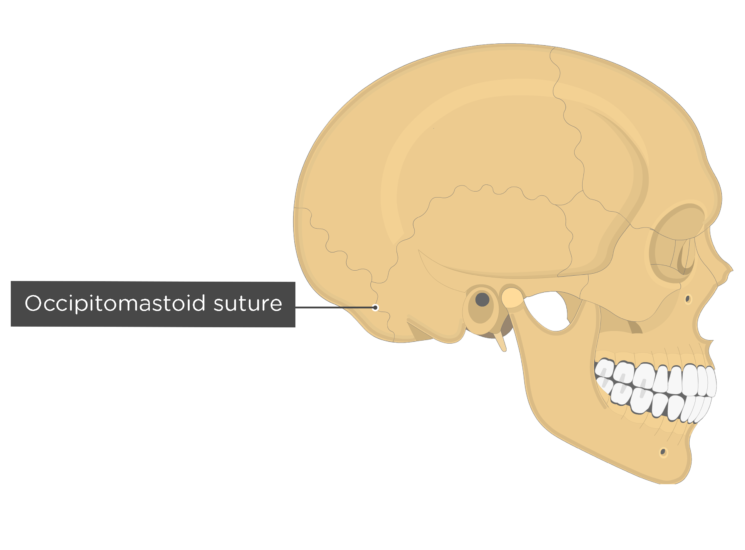 occipitomastoid suture - lateral view