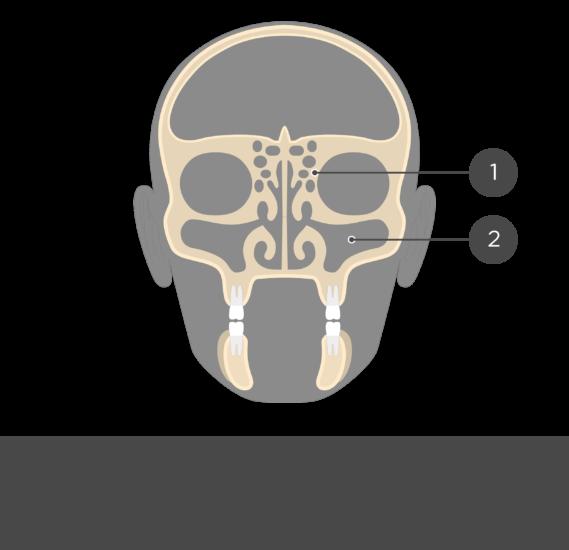 paranasal sinuses - coronal view - test yourself