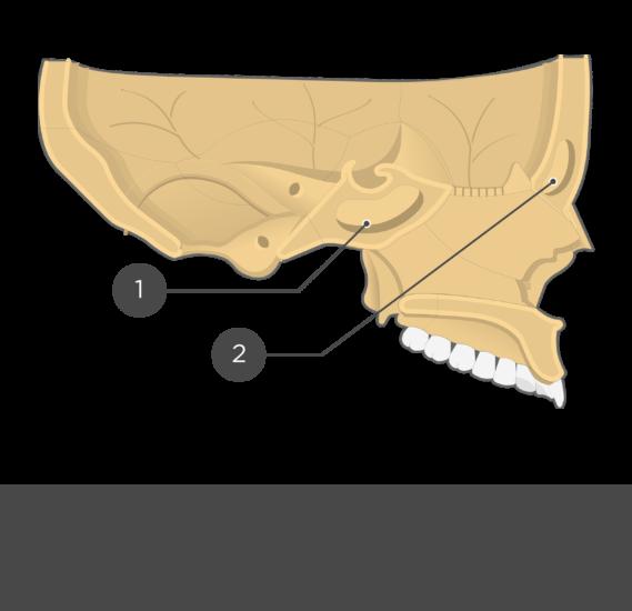 paranasal sinuses - sagittal view - test yourself