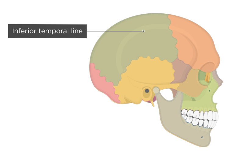 the inferior temporal line of the parietal bone - lateral view