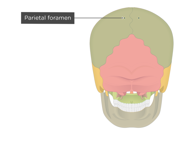 The parietal foramen of the parietal bone - posterior view