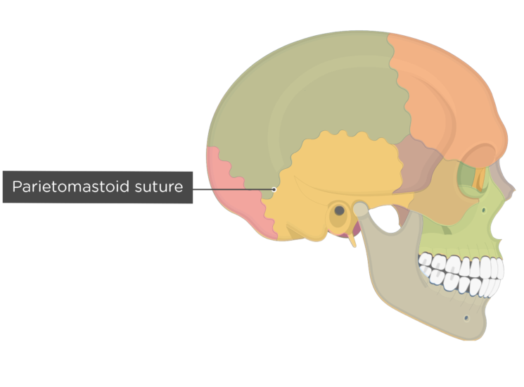 parietomastoid suture - lateral view - divisions