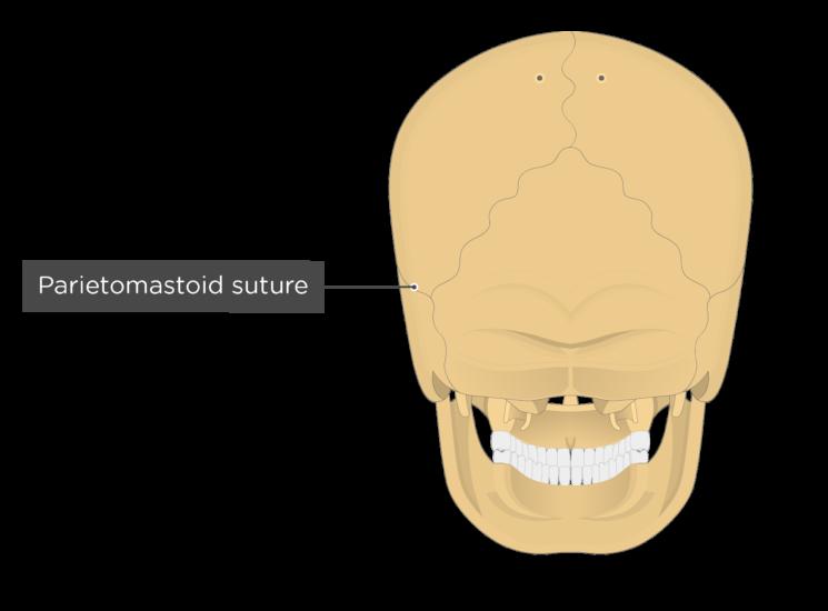 parietomastoid suture - posterior view