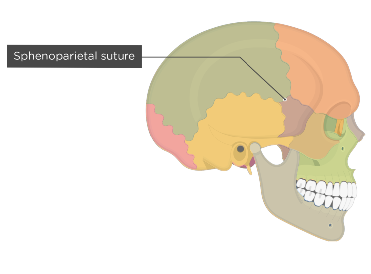 sphenoparietal suture - lateral view - divisions