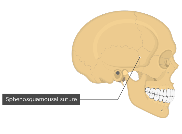 sphenosquamousal suture - lateral view
