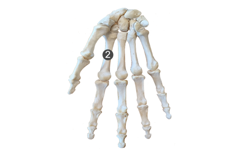 2nd metacarpal bone
