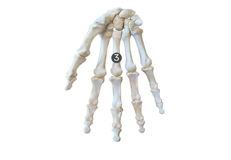 3rd metacarpal bone