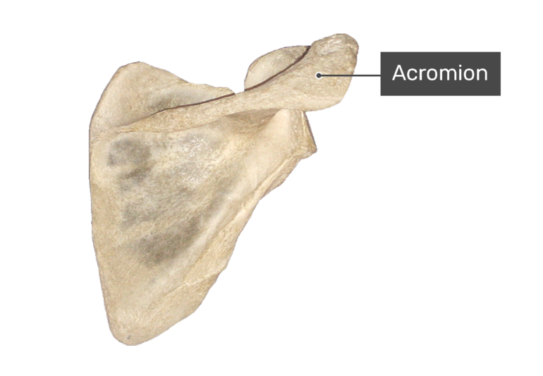 Posterior scapula bone with labeled acromion