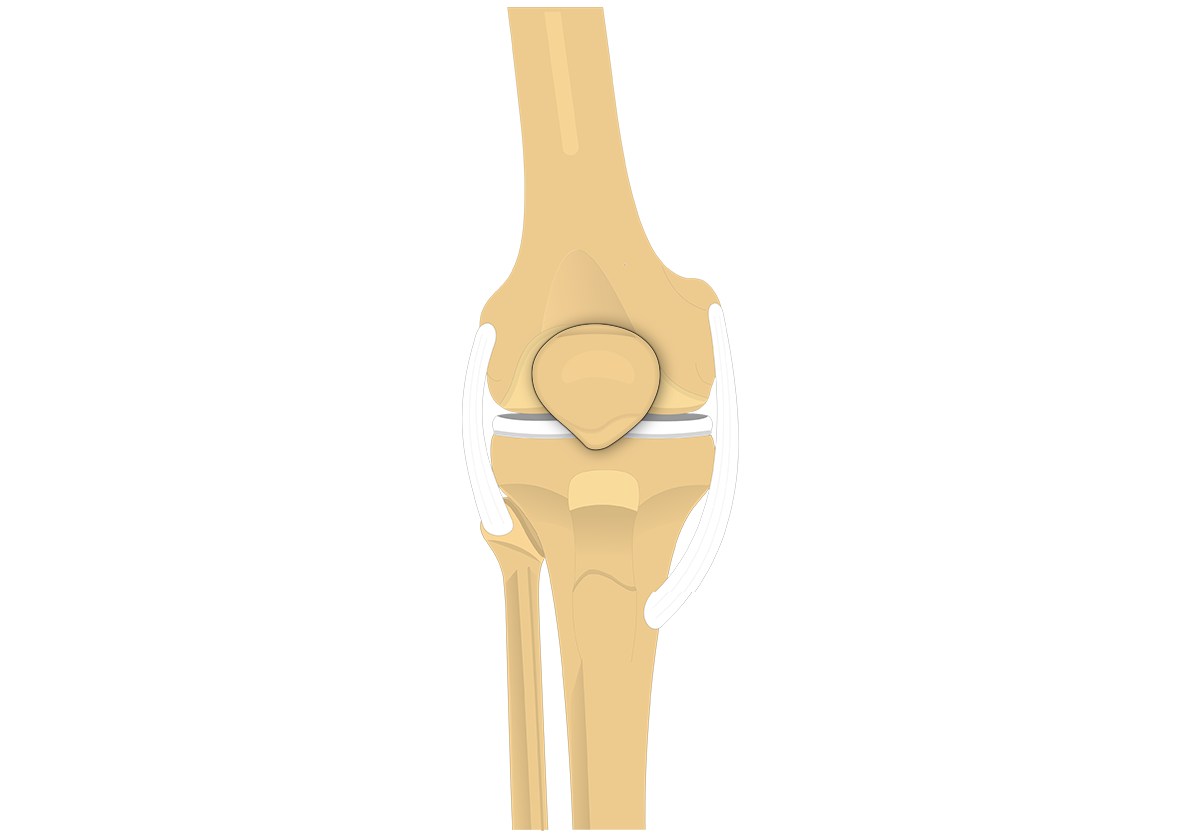 Patella Bone - Anterior and Posterior Views