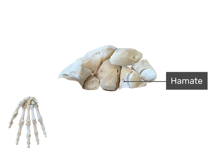 Anterior Hand and Wrist, the carpal bones are being magnified with a label of the hamate bone