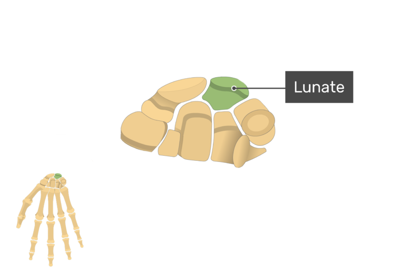 Anterior Hand and Wrist with the carpal bones being magnified and the lunate bone being highlighted