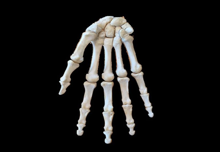Bone image of anterior phalanx highlighted