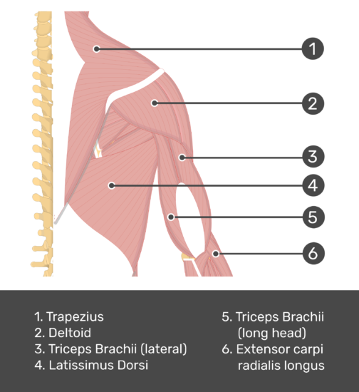 An posterior view of the back and arm muscles with labels for Trapezius, Deltoid, Triceps Brachii (lateral and long head), Latissimus Dorsi and Extensor Carpi Radialis Longus muscles.
