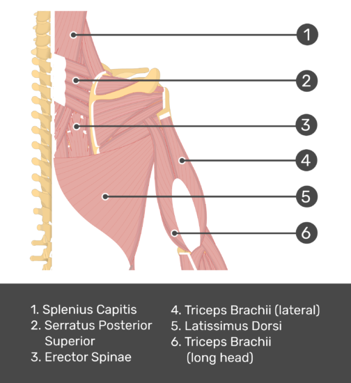 An posterior view of the back and arm muscles with labels for Splenius Capitis, Serratus Posterior Superior, Erector Spinae, Triceps Brachii (long and lateral head) and Latissimus Dorsi muscles.