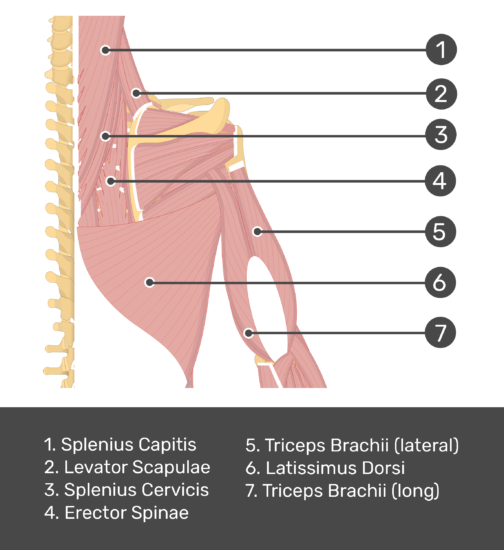 An posterior view of the back and arm muscles with labels for Splenius Capitis, Levator Scapulae, Splenius Cervicis, Erector Spinae, Triceps Brachii (long and lateral head) and Latissimus Dorsi muscles.