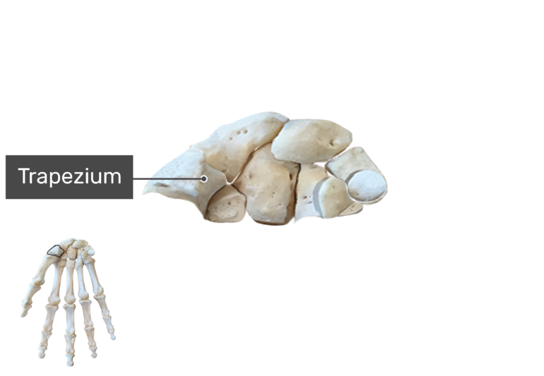 Anterior Hand and Wrist, the carpal bones are being magnified with a label of the trapezium bone