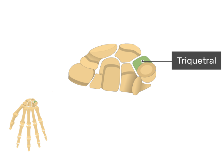 Anterior Hand and Wrist with the carpal bones being magnified and the triquetral bone being highlighted