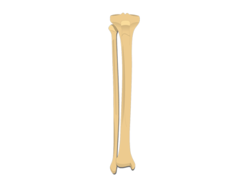 anterior tibia fibula - featured image