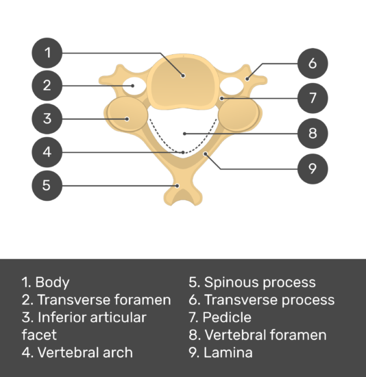 Test yourself image of the inferior view of the cervical vertebra showing answers: body, transverse foramne, inferior articular facet, vertebral arch, spinous process, transverse process, pedicle, vertebral foramen, lamina