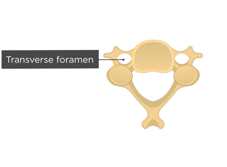 Labelled image of the transverse foramen of a cervical vertebra