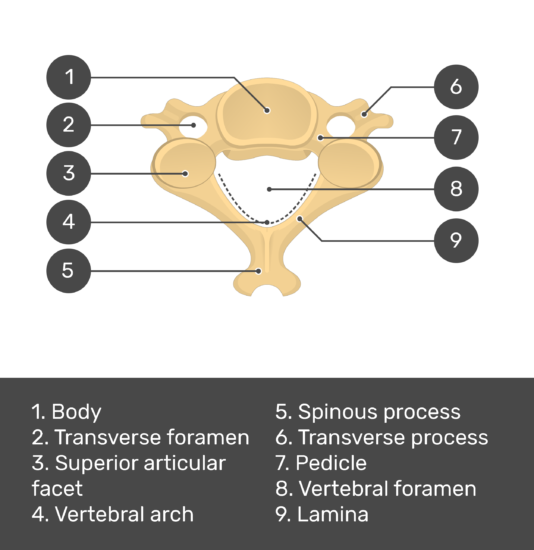 Test yourself image showing answers: Body, Transverse foramen, Superior articular facet, Vertebral arch, Spinous process, Transverse process, Pedicle, Vertebral foramen, Lamina