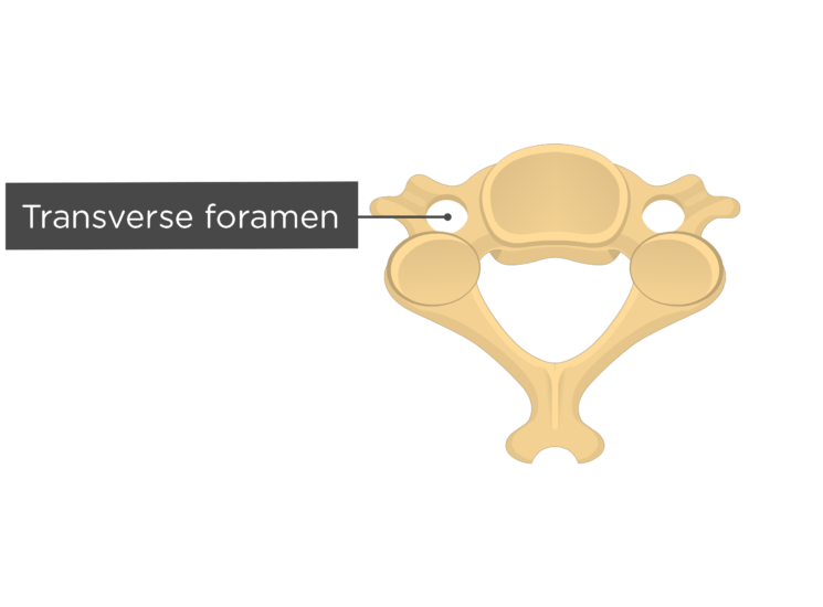 Labelled image of the transverse foramen of a cervical foramen