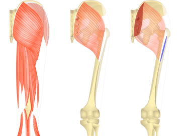 Feature image. Three images of posterior thigh and gluteal region. First image shows all superficial muscles, second image shows gluteus maximus and third image shows the origin and insertions of gluteus maximus.
